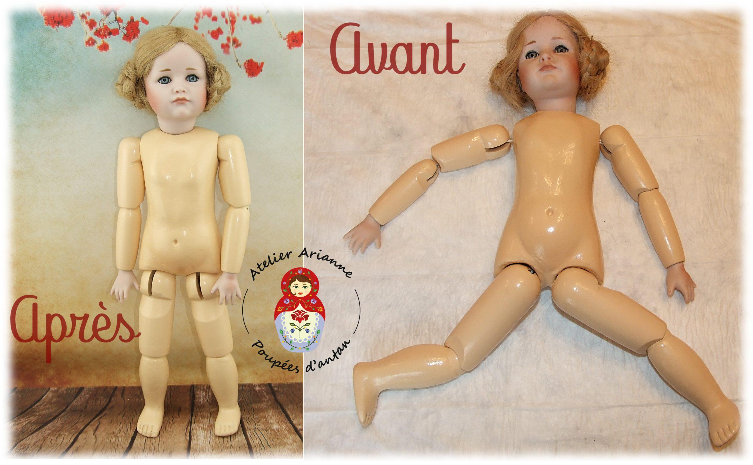Clinique des poupées – la poupée qui a perdu un doigt